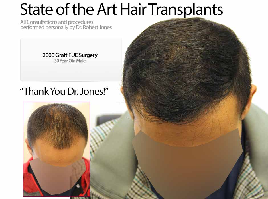 2015-11-3-2000-graft-fue-30-year-old-front-male