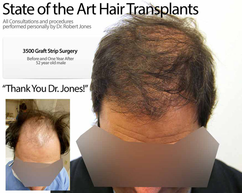Strip Surgery – 3500 Grafts – 52 Year Old Male