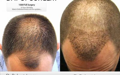 Day Of Surgery – CASE STUDY – 1500 FUE Grafts – 35 Year Old Male Patient