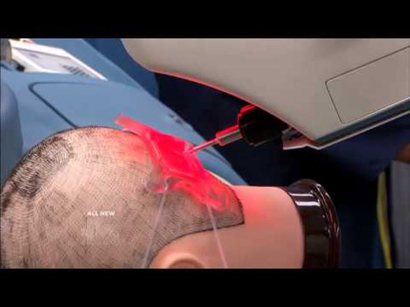 Robotics and The Future Of Hair Transplants…
