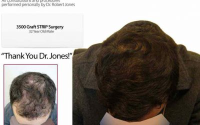 Case Study – 3500 Graft Strip Surgery – 32 Year Old Male