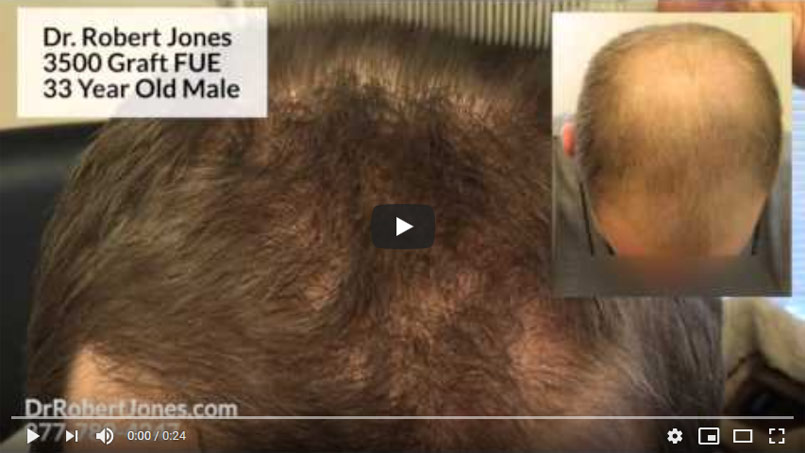 VIDEO CASE STUDY – 3500 Graft FUE – 33 Year Old Male
