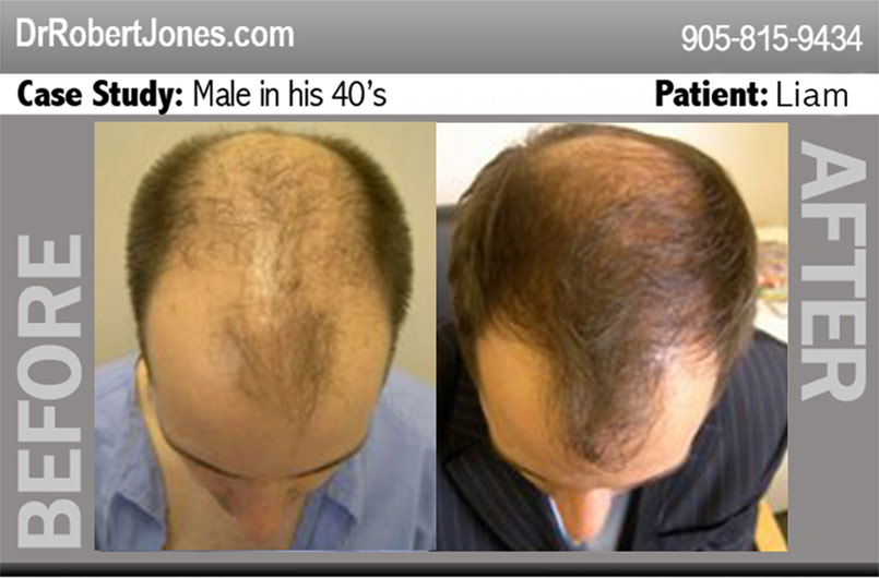 Celebrity Hair Loss – No exception to the rule of mother nature!