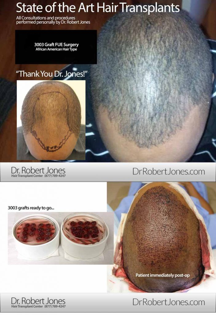 2016-2-3-african-american-fue-3003-grafts