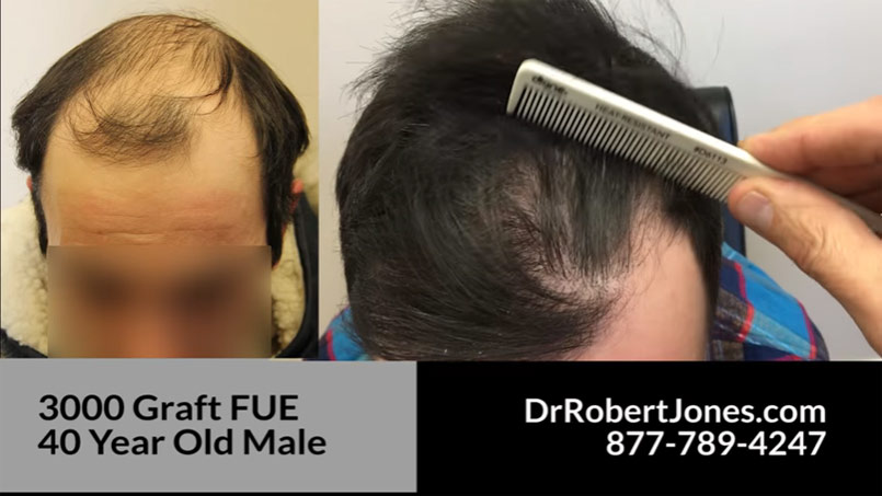 3000 Graft FUE – AMAZING RESULT – 40 Year Old Male – VIDEO