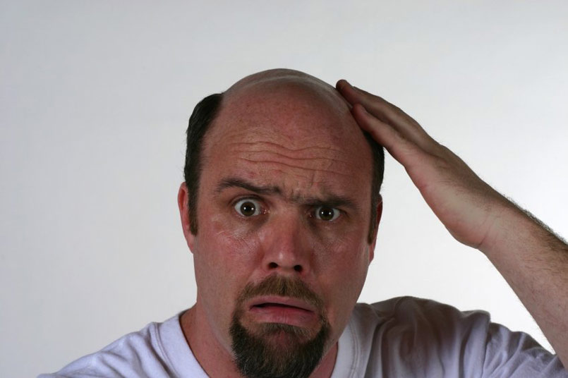 Will there ever be a permanent cure for hair loss?
