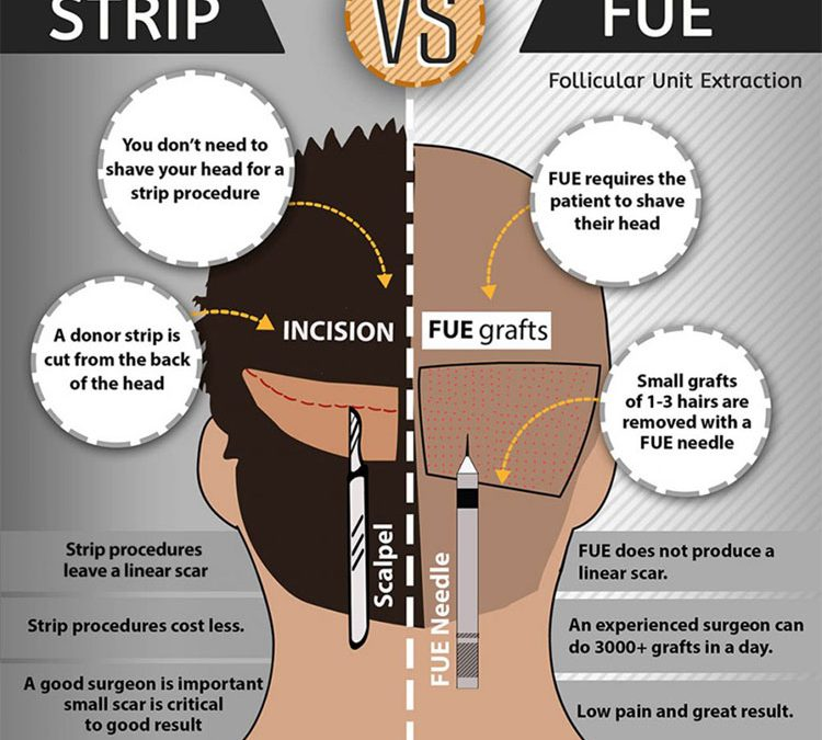 FUE vs Strip Hair Transplants (INFOGRAPHIC)