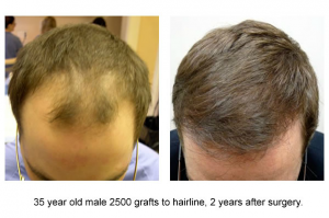 2500-grafts-2-yrs-male-35-30s