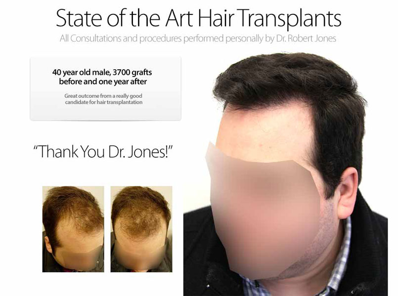 When should you get a hair transplant?