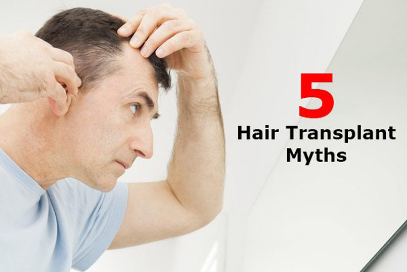Five Common Hair Transplant Myths