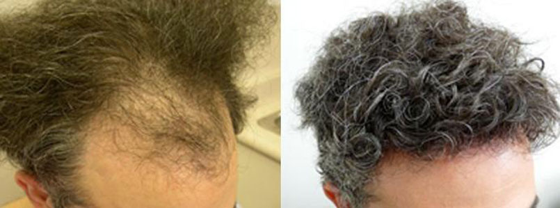Undetectable hair transplants – banish those bald spots!