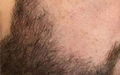1500 Graft Beard Hair FUE – before and after – 6 months