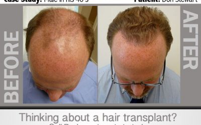 Hair Transplant Infographic – DON