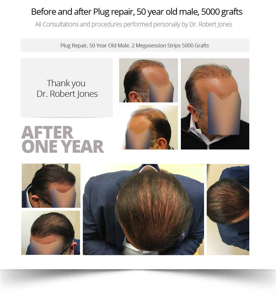 Before-and-after-Plug-repair-50-year-old-male-5000-grafts-1