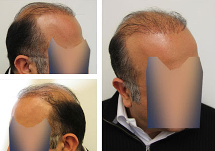 Case Study – Before and after Plug repair, 50 year old male, 5000 grafts