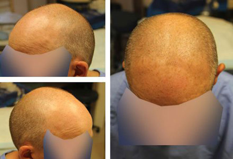 Case Study – 3000 Graft FUE, 45 year old male