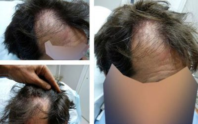 Case Study – Before and After hairline repair, 48 year old male, 1800 grafts