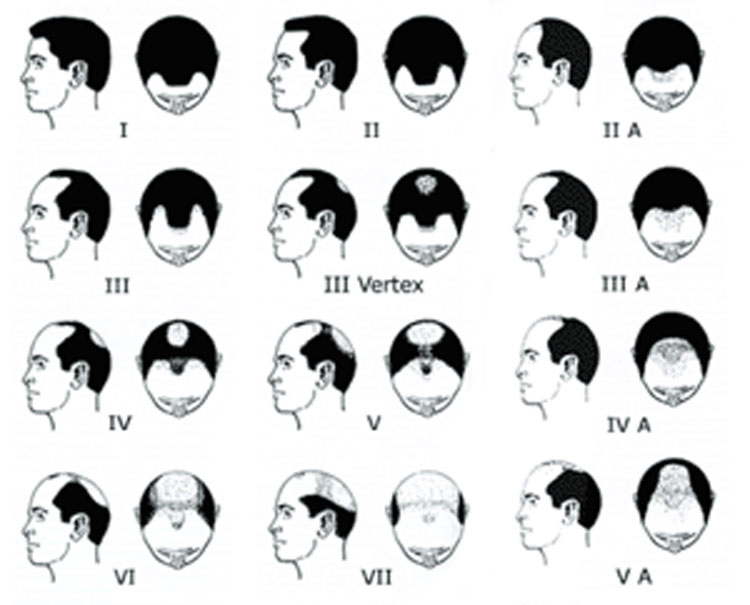 Receding hairline vs thinning at the crown – which is worse?