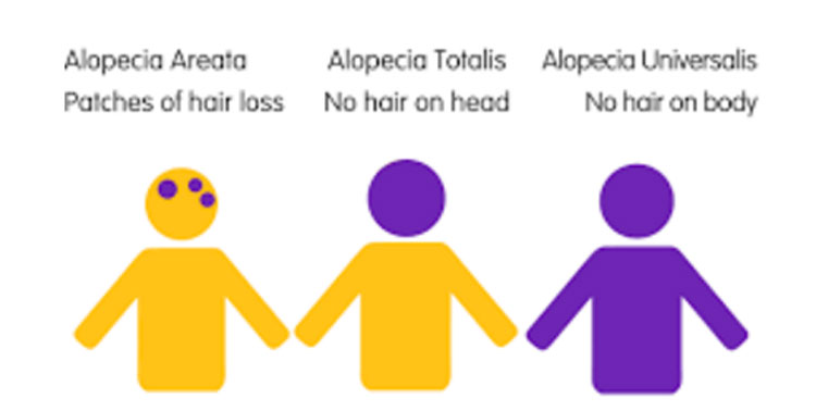 Different Types of Alopecia.