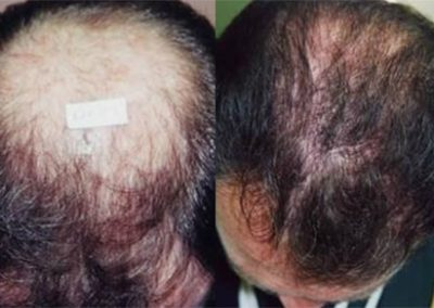 Before And After Crown Procedure, 1200 follicular units