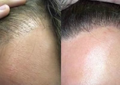 Before And After Hair Line Procedure, 1500 FUE grafts