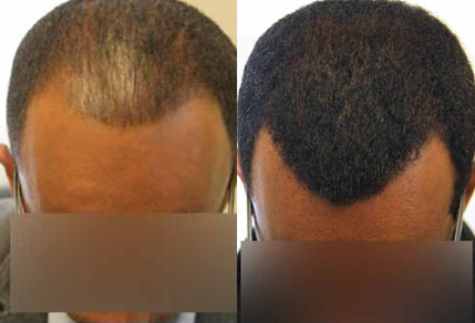 Before And After FUE Procedure, 35 Year Old Male, 1500 Grafts