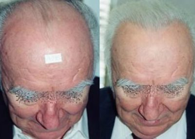 Before And After 1500 follicular units