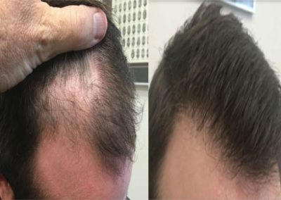 Before and After, 1513 grafts