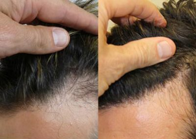 Before And After Hairline Reconstruction, 42 year old male, 1800 Grafts
