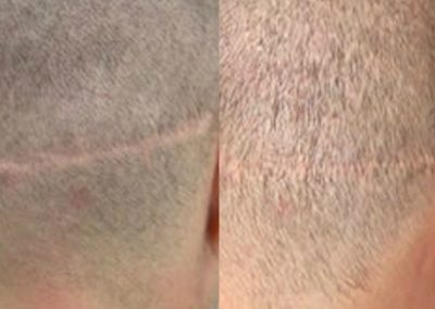 Before And After Scar Repair, 34 years old male,  200 grafts