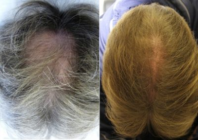Before And After Graft Strip Surgery, 50 Year Old Male, 2000 Grafts