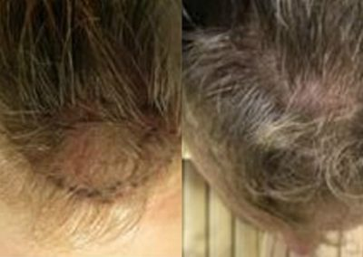 Before And After, 2000 grafts FUE
