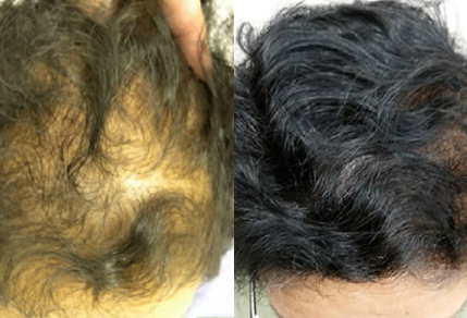 Before And After, 50 year old female, 2000 grafts