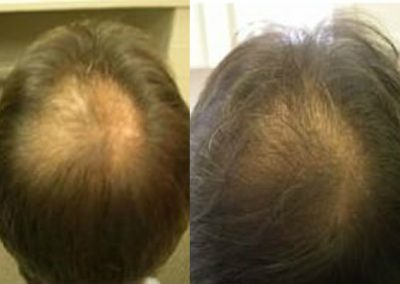 Before And After, 50 years old male, 2000 plus grafts