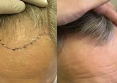 Before And After Hair Transplant Procedure, 50 years old male, 2000 plus grafts