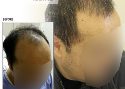 Before And After Graft Strip Hair Transplant Procedure, 45 year old male, 3500 Grafts