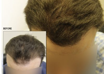 Before And After Graft Strip Surgery, 3000 Grafts