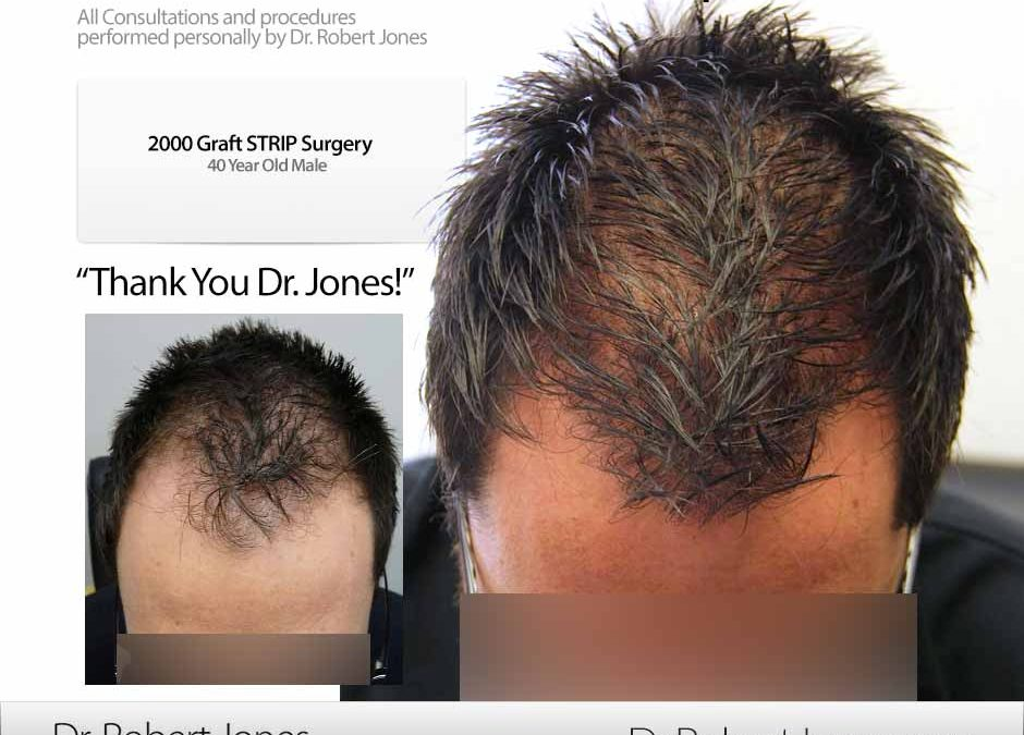Before And After Graft Strip Procedure, 40 Year Old Male, 2000 Grafts