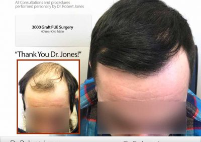 Before And After Graft FUE Procedure, 40 Year Old Male, 3000 Grafts