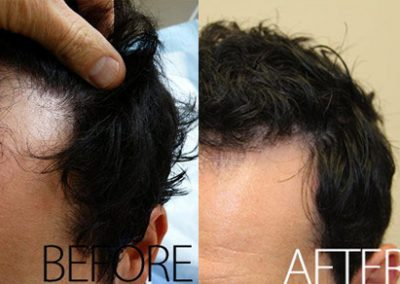 Before And After Hair Transplant Procedure, 40 year old Male, 2042 Grafts