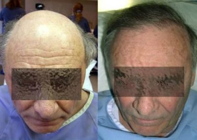 Before And After grafts strip surgery, 65 year old male, 2200 grafts