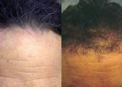 Before And After strip surgery, 2400 grafts hairline recreation