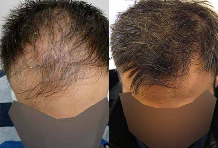 Before And After Graft Strip Procedure, 42 Year Old Male, 2500 Grafts