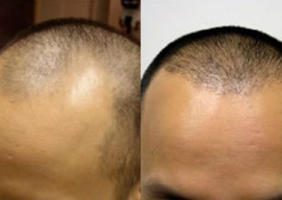 Before And After FUE hairline restoration, 30 year old male, 2500 grafts FUE