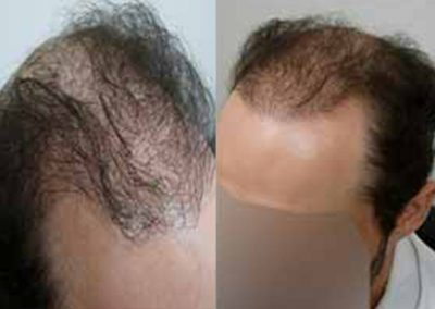 Before And After, 43 Year Old Male, 2500 grafts