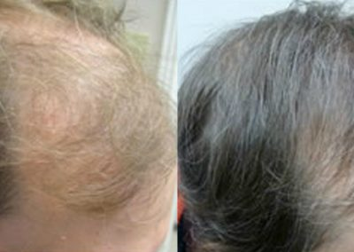 Before And After, 45 year old male, 2500 grafts