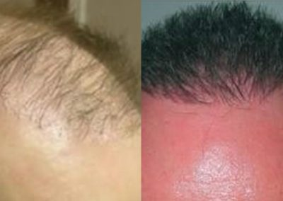 Before And After, 2500+ grafts