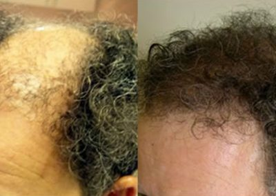 Before And After Graft Plug Repair, 48 year old male, 2800 Grafts