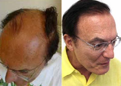 Before And After Graft Strip Surgery, 62 Year Old Male, 2912 Grafts