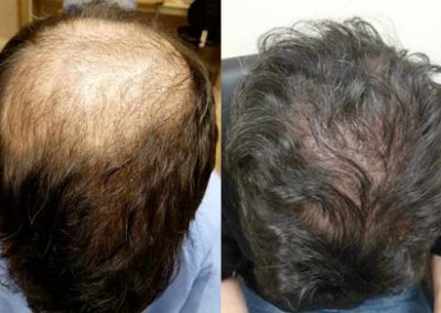 Before And After Restoring the Crown, 43 Year Old Male, 3000 FUE